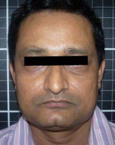 facial rejuvenation patient 2273