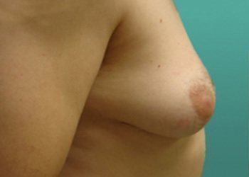 gynecomastia patient 2277