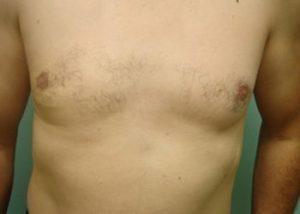 gynecomastia patient 2278