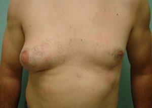 gynecomastia patient 2279