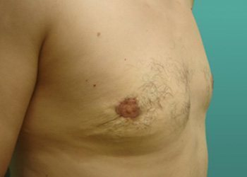 gynecomastia patient 2280