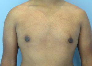 gynecomastia patient 2291