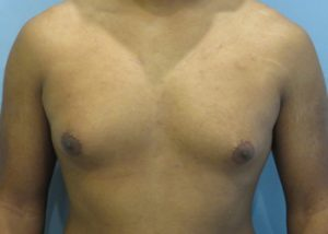 gynecomastia patient 2293