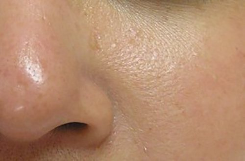 hydrafacial patient 2621