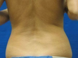 liposuction / laser liposuction patient 2140