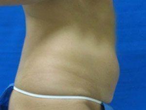 liposuction / laser liposuction patient 2144