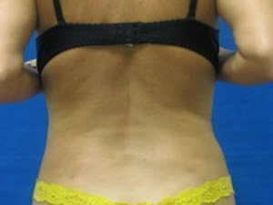 liposuction / laser liposuction patient 2145