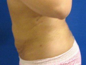 liposuction / laser liposuction patient 2154
