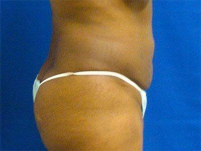liposuction / laser liposuction patient 2165