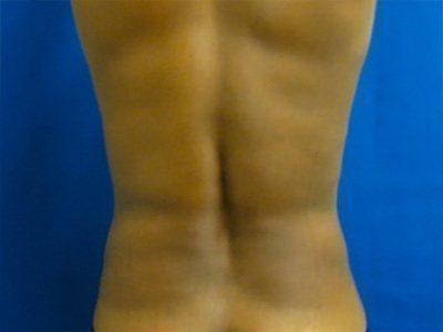 liposuction / laser liposuction patient 2169