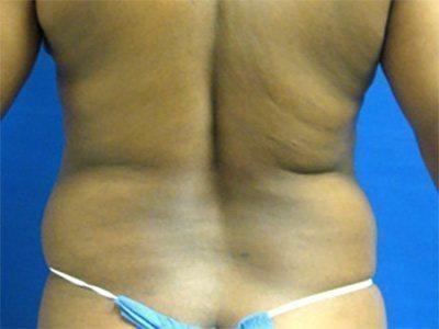 liposuction / laser liposuction patient 2170