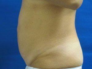 liposuction / laser liposuction patient 2186