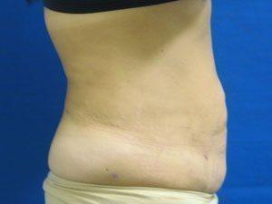 liposuction / laser liposuction patient 2187