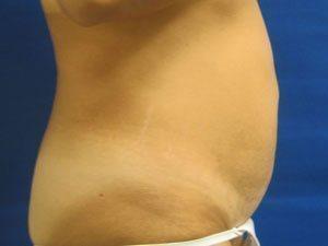 liposuction / laser liposuction patient 2188