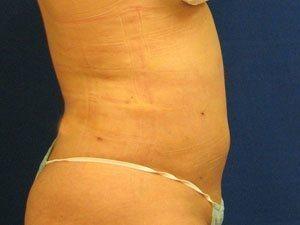 liposuction / laser liposuction patient 2191