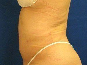 liposuction / laser liposuction patient 2193