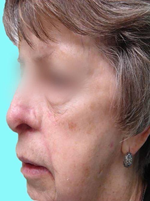 skin cancer patient 2245