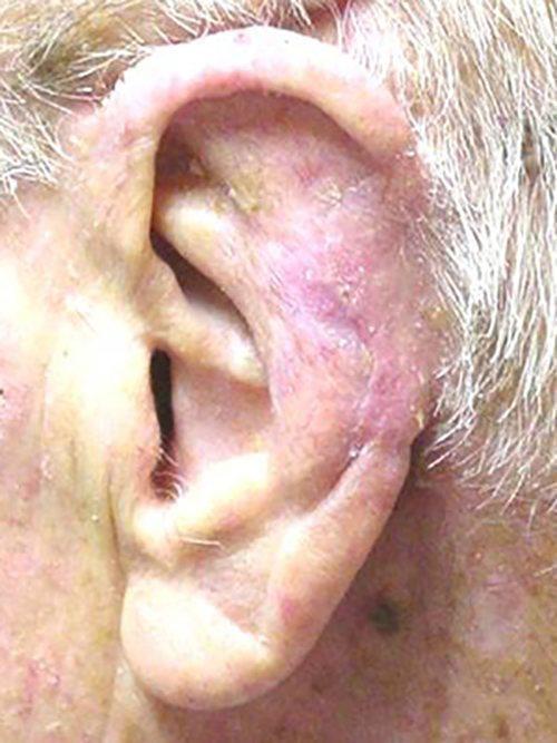 skin cancer patient 2248