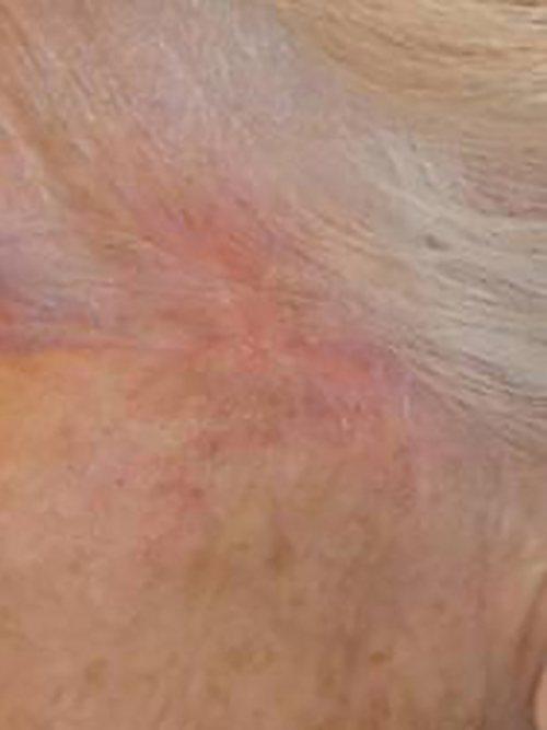 skin cancer patient 2254