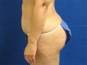 liposuction patient 2783