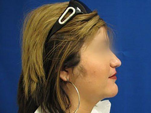 smartlipo neck patient 2257