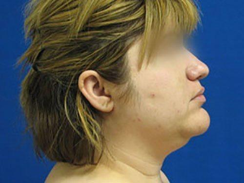 smartlipo neck patient 2258
