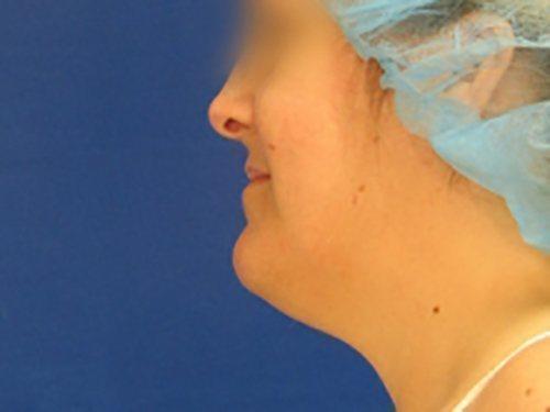 smartlipo neck patient 2260