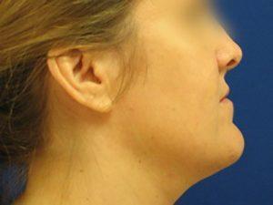 smartlipo neck patient 2261