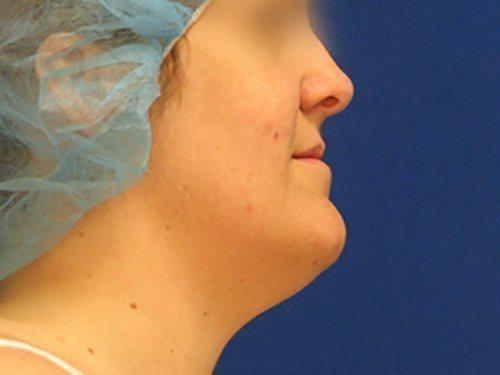 smartlipo neck patient 2262