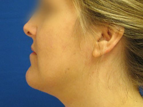 smartlipo neck patient 2263