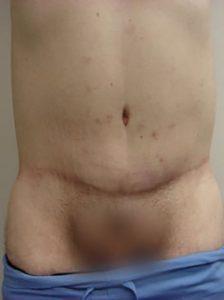 tummy tuck patient 2295