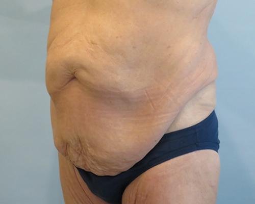 tummy tuck patient 2752