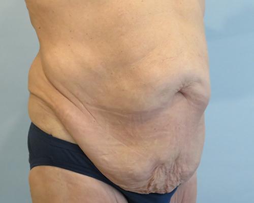 tummy tuck patient 2756