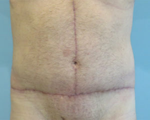 tummy tuck patient 2757