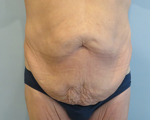 tummy tuck patient 2758