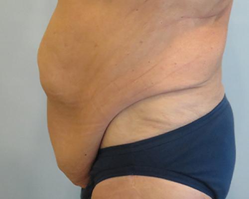 tummy tuck patient 2762