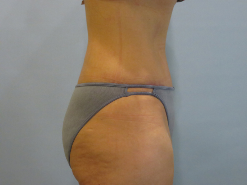 tummy tuck body lift patient 2332