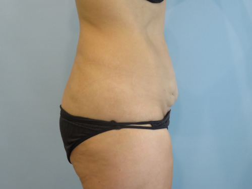 tummy tuck body lift patient 2333