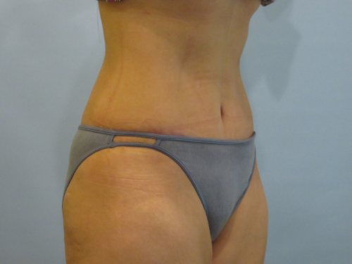 tummy tuck body lift patient 2334