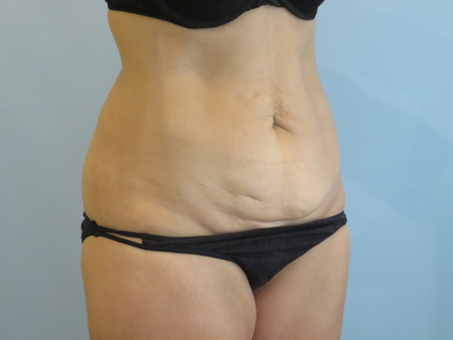 tummy tuck body lift patient 2335
