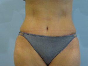 tummy tuck body lift patient 2336