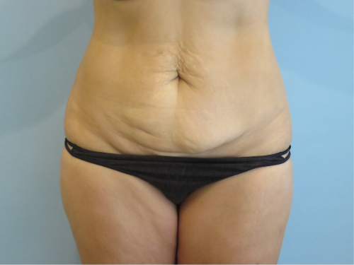 tummy tuck body lift patient 2337