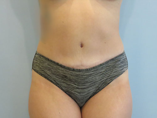 tummy tuck body lift patient 2343