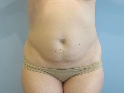 tummy tuck body lift patient 2344