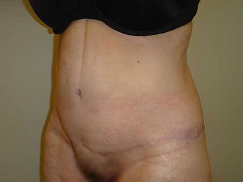 tummy tuck body lift patient 2348
