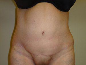tummy tuck body lift patient 2350