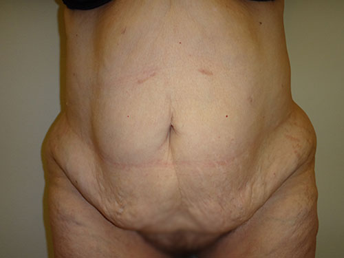 tummy tuck body lift patient 2351