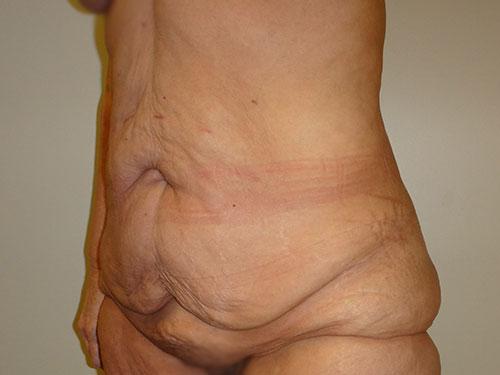 tummy tuck body lift patient 2353