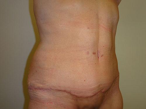 tummy tuck body lift patient 2354