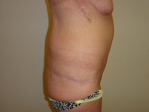 tummy tuck body lift patient 2360
